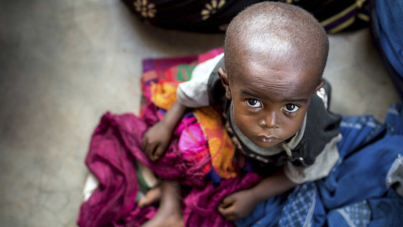 Un enfant souffrant de malnutrition attend un traitement dans un centre de santé dans la province du Kasaï oriental en République démocratique du Congo. (Photo: UNICEF/UN064921)