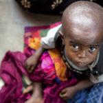Quoi de plus obscène, finalement, que des enfants qui meurent de faim?   © ONU